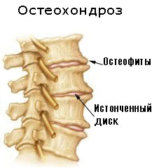Образование остеофитов