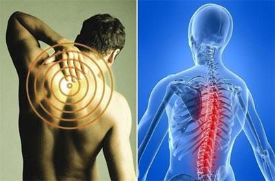 Болевой синдром при шейном остеохондрозе