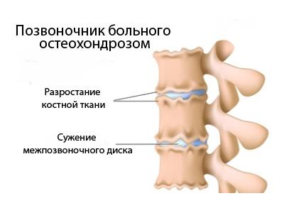 Причины возникновения остехондроза