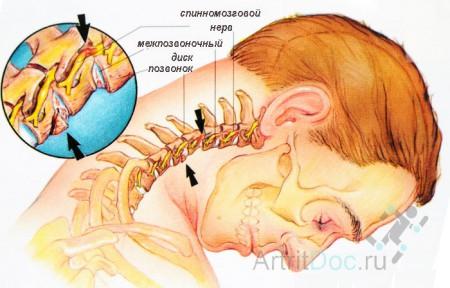 Механизм развития остеохондроза