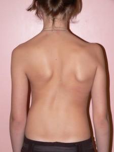 Сколиоз грудного отдела 2 степени