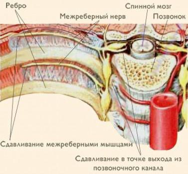 Межреберная нейропатия