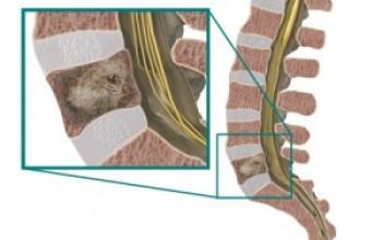 Опухоль позвоночника