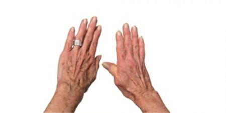 Деформирующий артроз кистей рук
