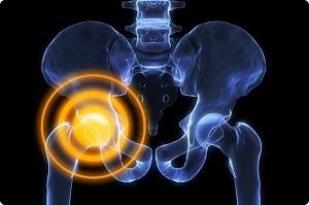 При артрозе 2 степени головка бедренной кости смещается, становится бугристой, с неровной суставной поверхностью