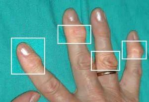 По статистике, артрозу менее всего подвержен большой палец кисти