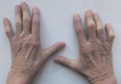 Припухлость пястно-фаланговых суставов