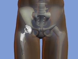 Сегодня техника хирургических вмешательств находится на небывало высоком уровне