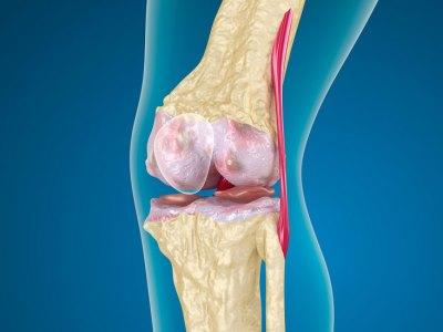 Пателлофеморальный артроз коленного сустава
