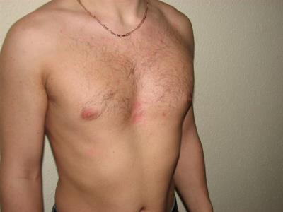 Воронкообразная деформация грудной клетки