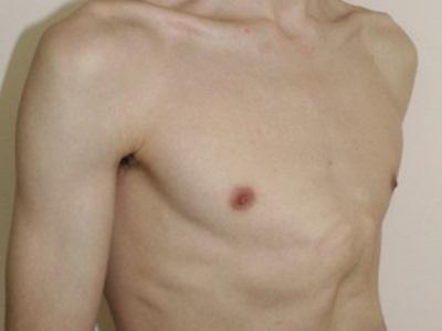 Килевидная грудная клетка