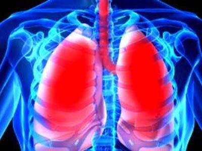 Пневмоторакс грудной клетки