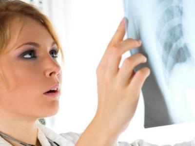 Рентген грудного отдела позвоночника
