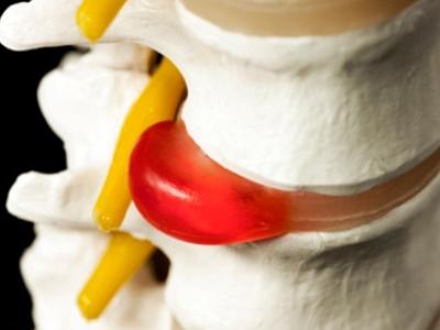 Грыжа диска в грудном отделе