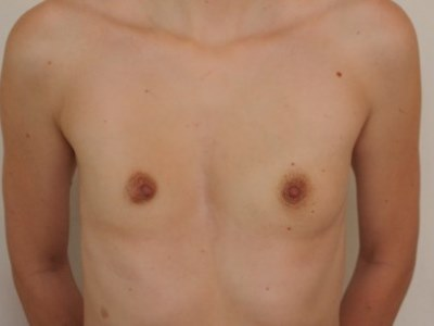 Уменьшение грудной клетки