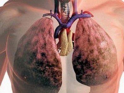 Эмфизема грудной клетки